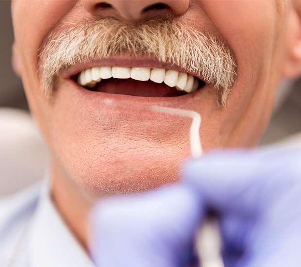 Evans Adjusting to New Dentures