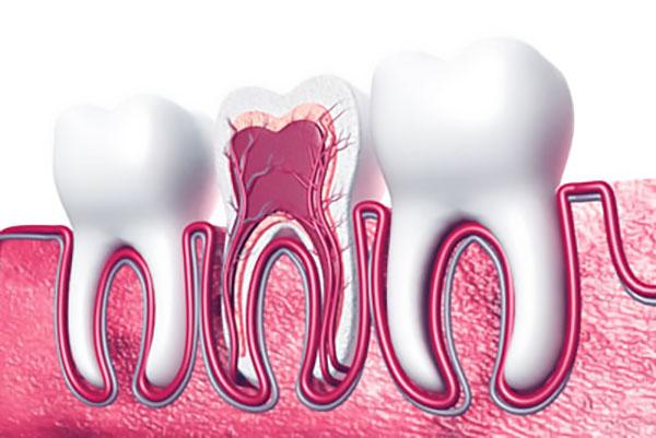 gum disease Evans, GA