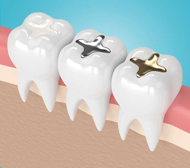 Evans Composite Fillings
