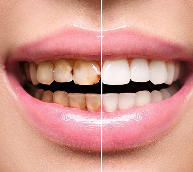 Evans Dental Implant Restoration