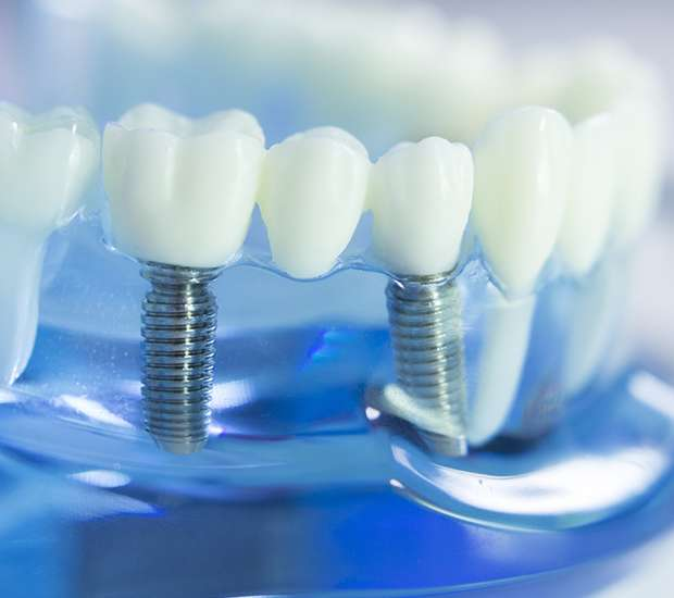 Evans Dental Implants