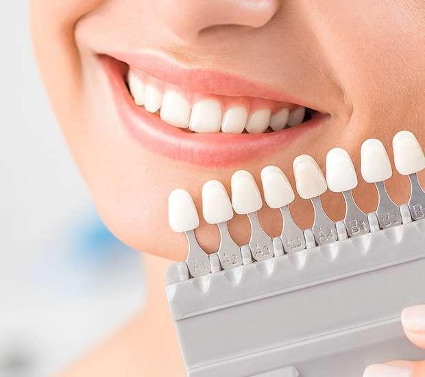 Evans Dental Veneers and Dental Laminates