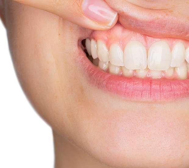 Evans Gum Disease