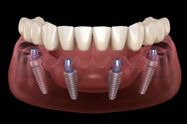 Implant Supported Dentures: Reasons To Consider All On