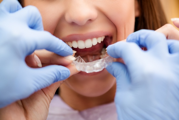Clear Aligners: An Alternative To Braces For Adults