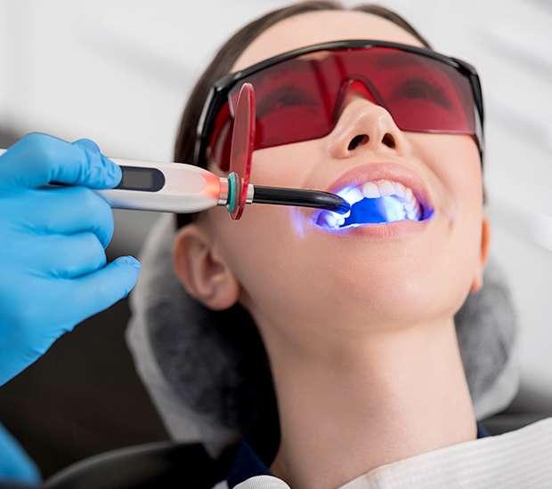 Evans Professional Teeth Whitening