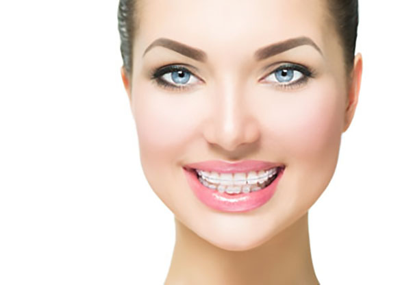 Why You Should Choose A Clear Braces Teeth Straightening Treatment
